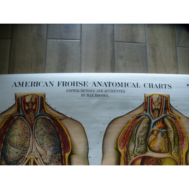 Vintage American Frohse Torso Anatomy Chart For Sale - Image 4 of 7