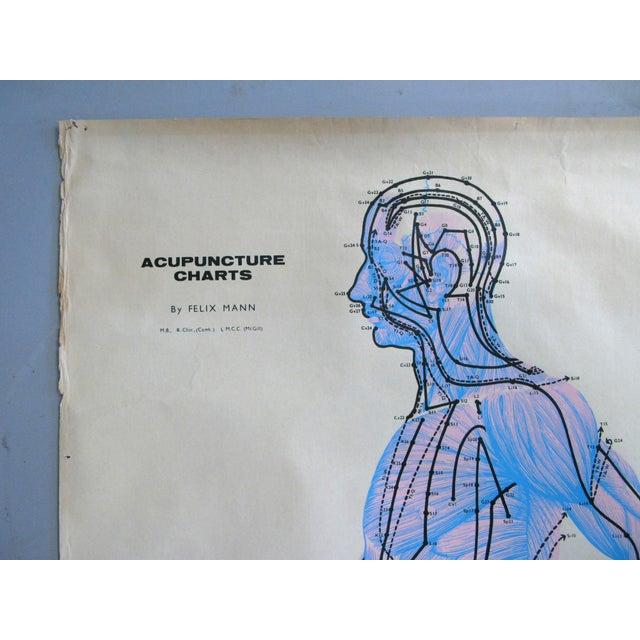 Textile Vintage Acupuncture Serigraphs on Linen by Felix Mann - Set of 3 For Sale - Image 7 of 12