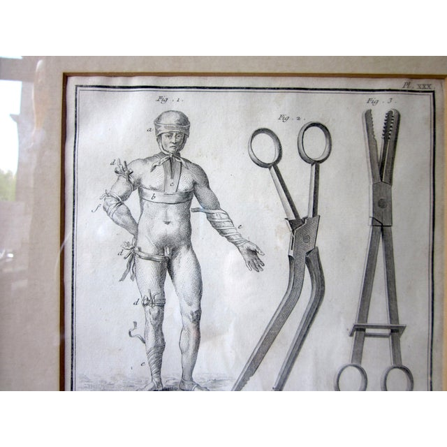Figurative Antique 18th Century Framed Engraving French Encyclopedia of Surgery Medical Diagram Anatomical Surgical Reference For Sale - Image 3 of 9