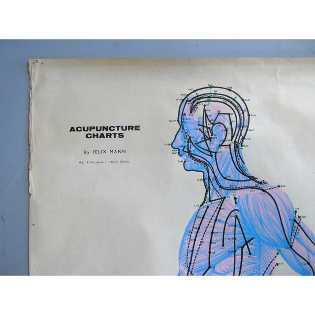 Textile Vintage Acupuncture Serigraphs on Linen by Felix Mann - Set of 3 For Sale - Image 7 of 12