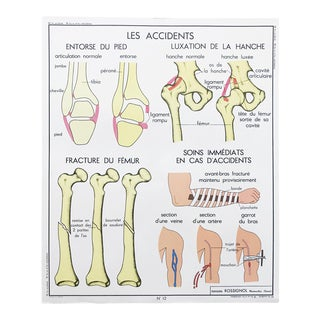 """Vintage French Educational Double-Sided """"Accidents / Bones & Joints"""" School Poster Chart For Sale"""