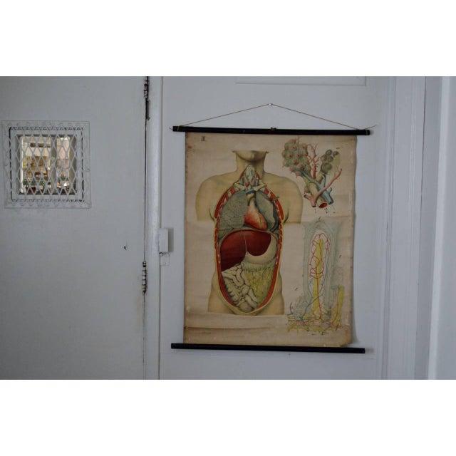 E. Hoelemann Antique Anatomical Chart - Image 3 of 7