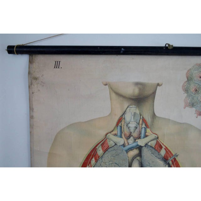E. Hoelemann Antique Anatomical Chart For Sale In Atlanta - Image 6 of 7