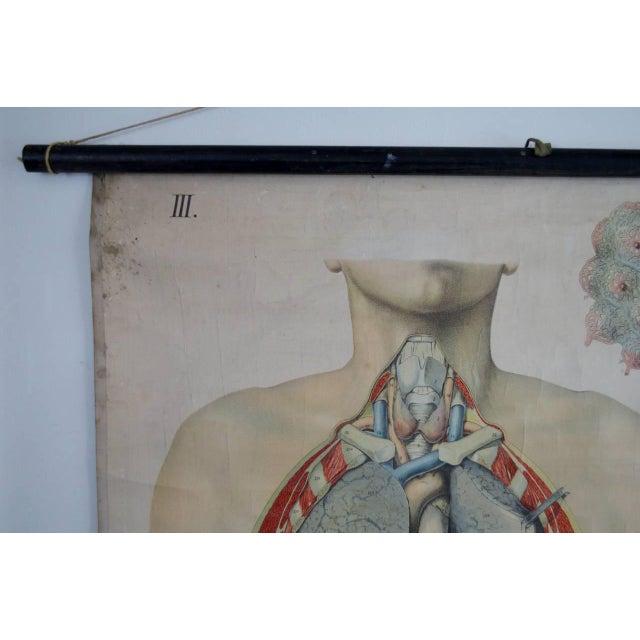 E. Hoelemann Antique Anatomical Chart - Image 6 of 7