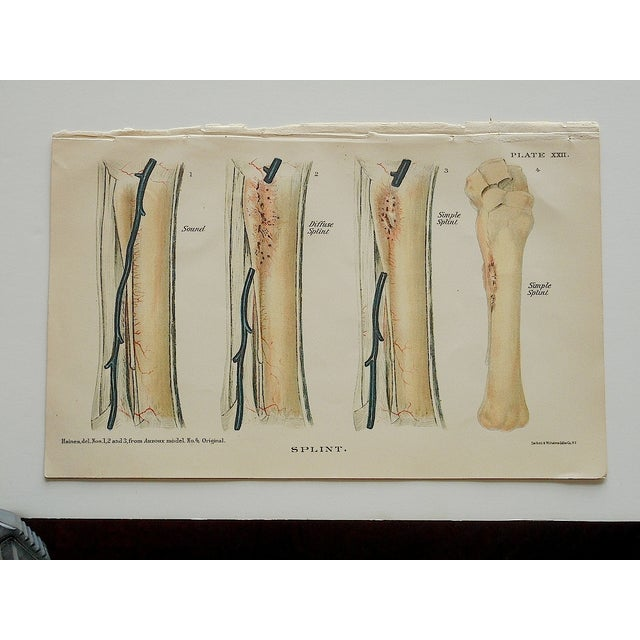 Antique Horse Veterinary Lithographs - Set of 3 - Image 5 of 5