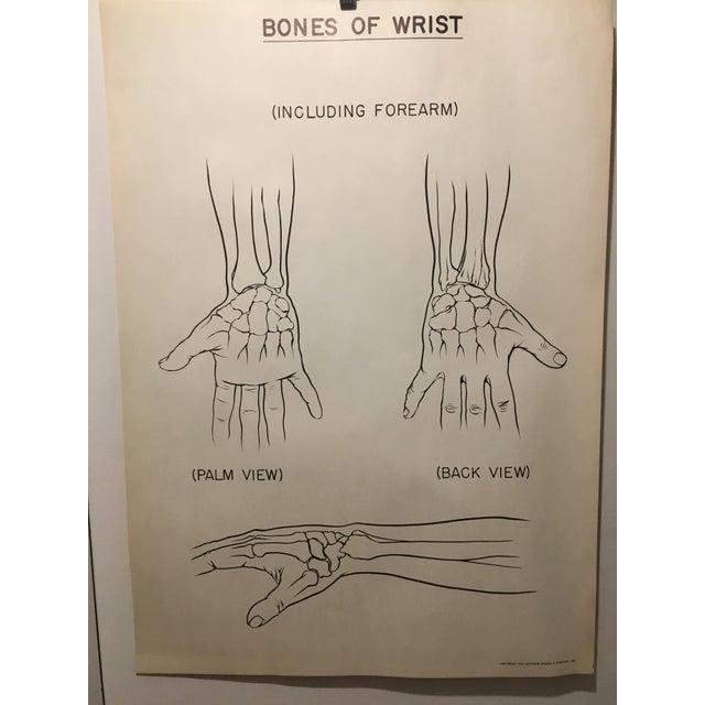 Industrial 1961 Vintage Bones of Wrist Courtroom Anatomy Chart For Sale - Image 3 of 3