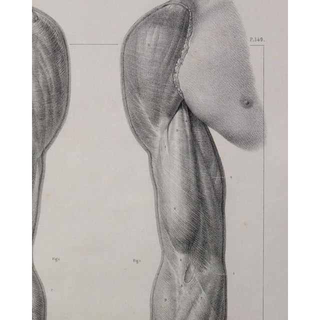 """1831 """"Muscles of the Arm, of the Hand, Fingers"""" surgical anatomy lithograph published in France. Framed under Plexiglas in..."""